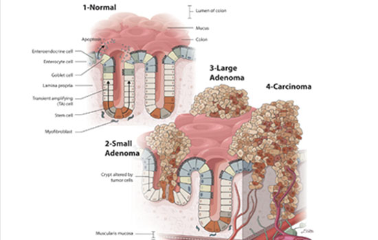 Cancer Metastasis in the Colon